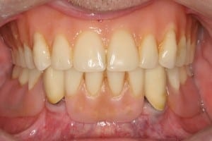 Immediate implants with prior Lower partial denture before