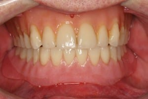 Immediate lower denture with Implants after